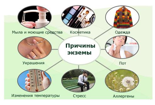 Диета при экземе на руках и ногах
