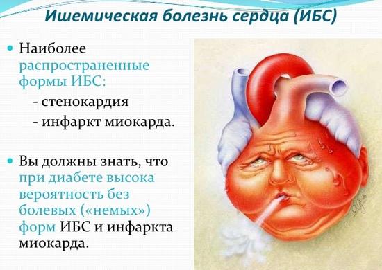 Ишемическая болезнь сердца (ИБС): лечение народными средствами, рецепты и советы