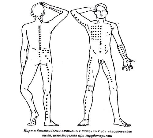 Гирудотерапия (бделлотерапия): что это, показания и противопоказания, отзывы о лечении пиявками