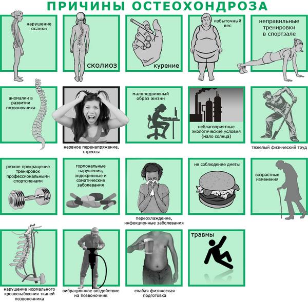 Lechenie-grudnogo-osteohondroza-narodnyimi-sredstvami-1