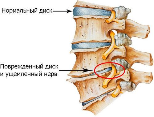 Lechenie-osteohondroza-poyasnichnogo-otdela-narodnyimi-sredstvami-1