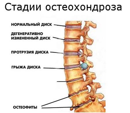 Lechenie-osteohondroza-poyasnichnogo-otdela-narodnyimi-sredstvami-3