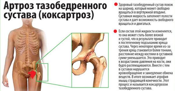 Lechenie-tazobedrennogo-sustava-narodnyimi-sredstvami-2