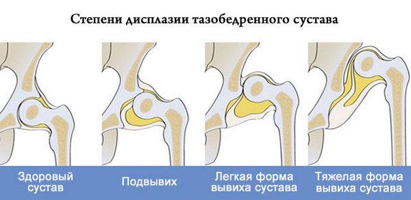 Lechenie-tazobedrennogo-sustava-narodnyimi-sredstvami-3