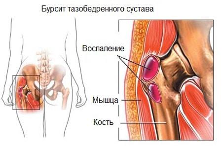 Lechenie-tazobedrennogo-sustava-narodnyimi-sredstvami-4
