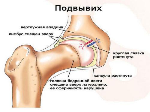 Lechenie-tazobedrennogo-sustava-narodnyimi-sredstvami-6