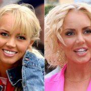 Звезды до и после пластики